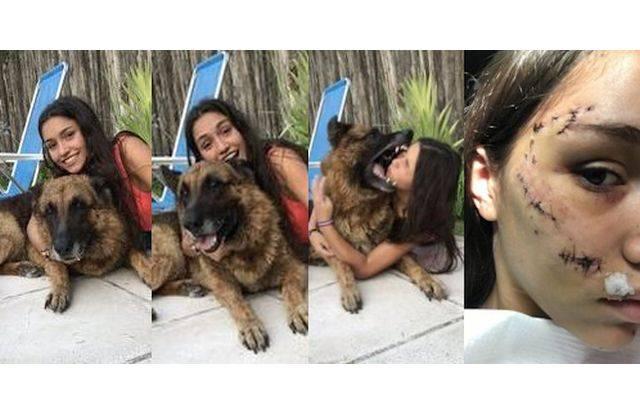 Seorang Model mendapat 40 jahitan setelah anjing menggigit wajahnya saat pemotretan