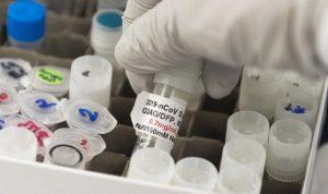 Endo mulai memproduksi vaksin COVID-19 potensial Novavax