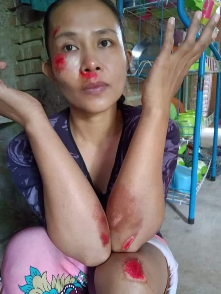 Jadi korban tabrak lari, Warga Desa Tanah Harapan Dilarikan Ke Puskesmas Bontobangun