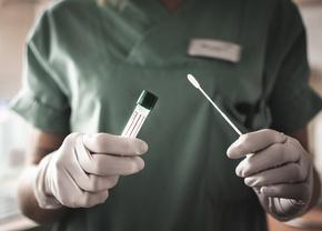 Pemerintah Menurunkan Harga pemeriksaan RT- PCR Sebesar 45%